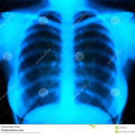 http://www.dreamstime.com/stock-photography-x-ray-image27029052
